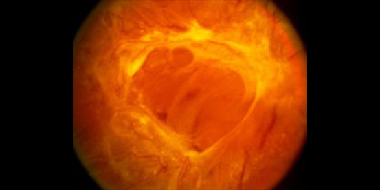 diabetic_retina_img_3