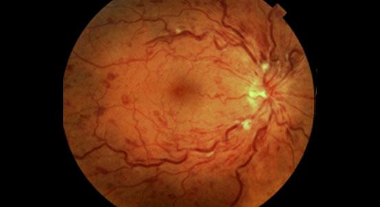 diseases_retinal_img